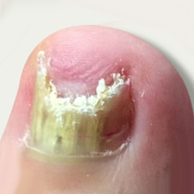 Treatment for fungal nails in Madurai
