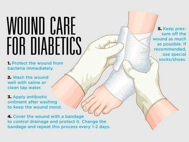 wound care for diabetics