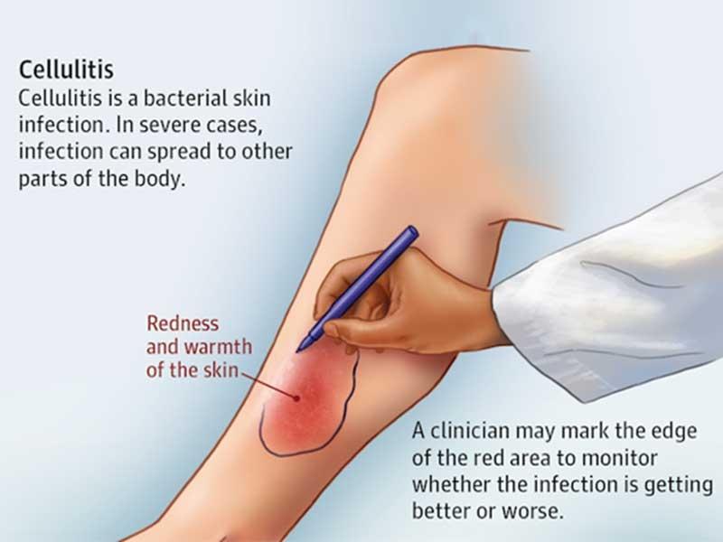 cellulitis treatment in tamil nadu