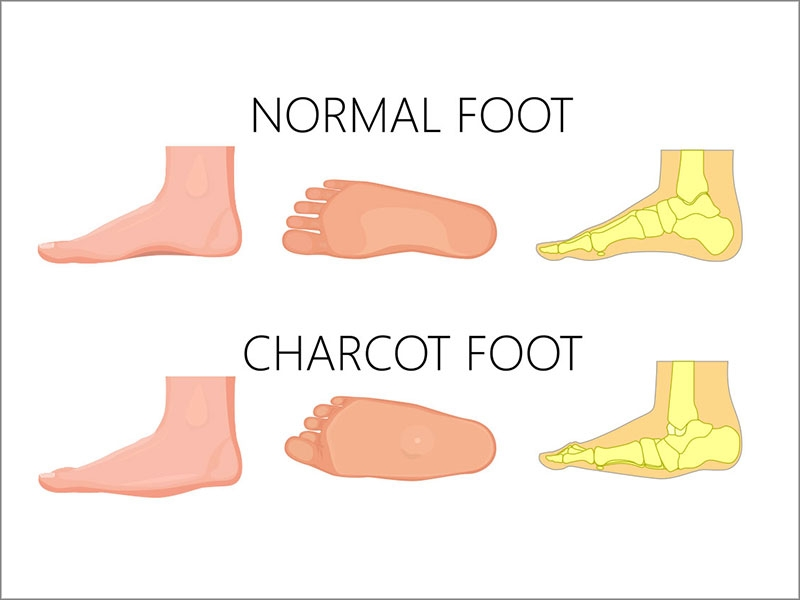 charcot foot treatment in tamil nadu