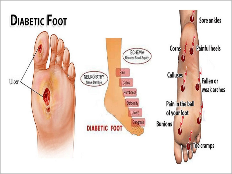 diabetic foot care in tamil nadu