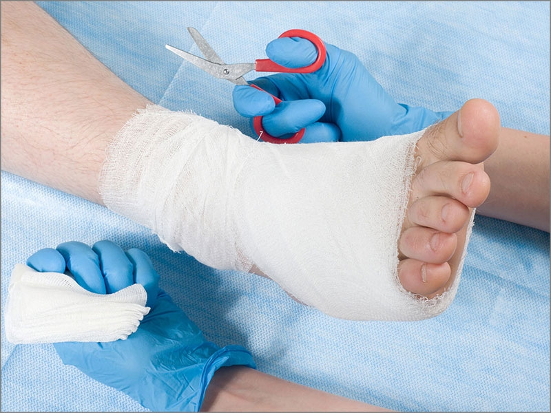 Diabetic foot reconstruction surgery in tamil nadu