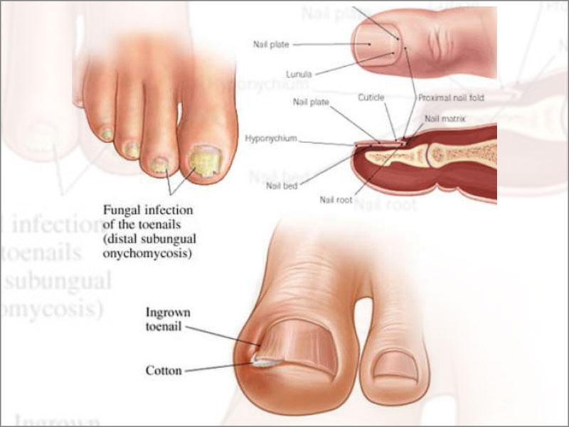 treatment for fungal nails in tamil nadu
